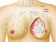 Gráfico: câncer de mama